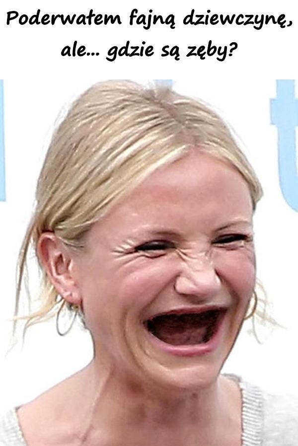 Poderwałem fajną dziewczynę, ale... gdzie są zęby?